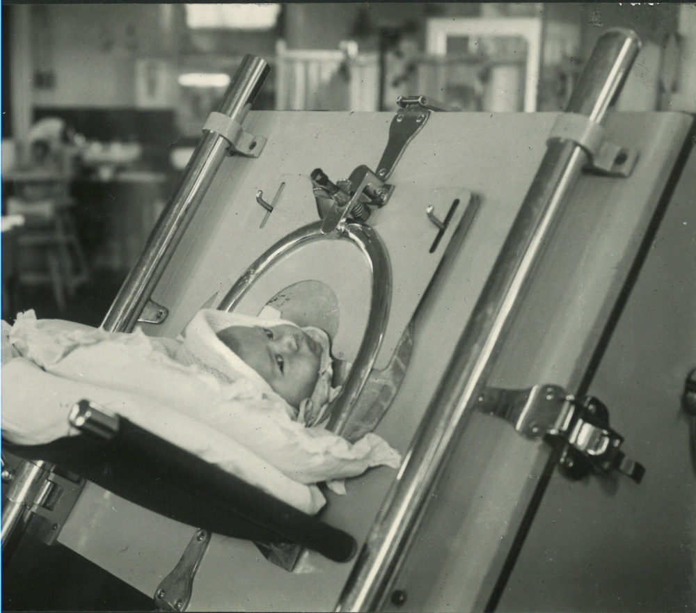 Infant in iron lung, 1940s